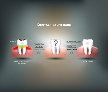 mouth cavity: Dental health care tips. Diet without sugars, brushing, fluoride treatment etc. And tooth with caries failure to comply with hygiene Illustration