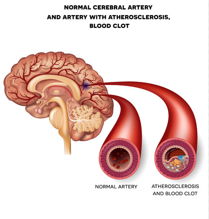 brains: Normal cerebral artery and artery with atherosclerosis and blood clot.  Blocked blood flow by the thrombus. Illustration