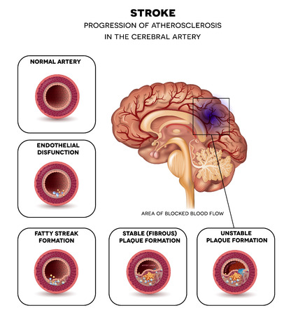 thrombus: Stroke in the cerebral artery, atherosclerosis progression step by step and finnaly thrombus in the artery.