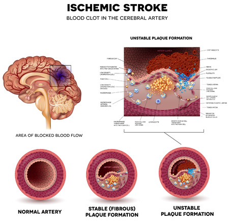 Ischemic stroke in the cerebral artery. Stable and Unstable plaque formation and thrombus.