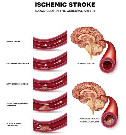 Tworzenie się skrzepów krwi w tętnicy mózgowej. Zablokowane przepływ krwi przez skrzeplinę. Anatomia zdrowej tętnicy, z miażdżycą tętnic niezdrowe i wreszcie skrzepu krwi.