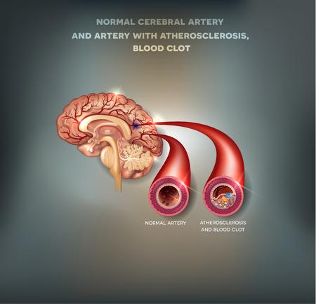 동맥 경화 및 혈전과 정상 뇌 동맥과 동맥. 혈전에 의해 차단 된 혈액의 흐름. 아름다운 메쉬 추상적 인 배경