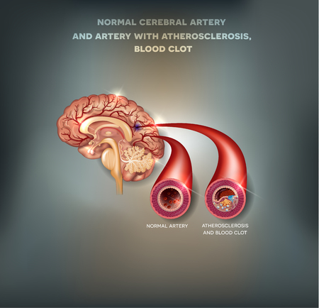 stroke: Normal cerebral artery and artery with atherosclerosis and blood clot.  Blocked blood flow by the thrombus. Beautiful mesh abstract background Illustration