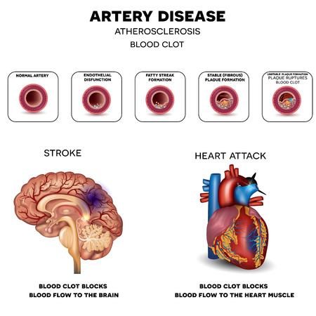Artery disease, Atherosclerosis, Stroke and Heart attack. Fatty plaque developing on the inside of the artery, at the end the artery is narrowed and blood clot blocks the artery.