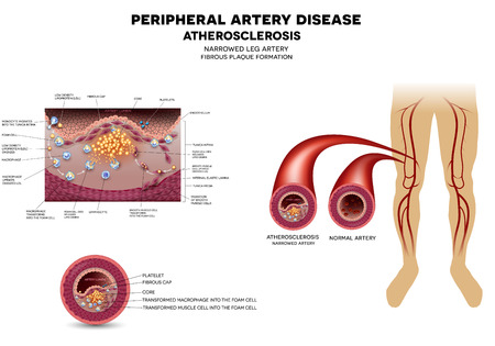 Leg artery disease, Atherosclerosis, narrowed artery by the fatty streak, plaque on the inner surface of the artery.