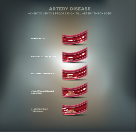 atherosclerosis: Artery disease, Atherosclerosis progression, narrowed artery and at the end blood clot block artery.
