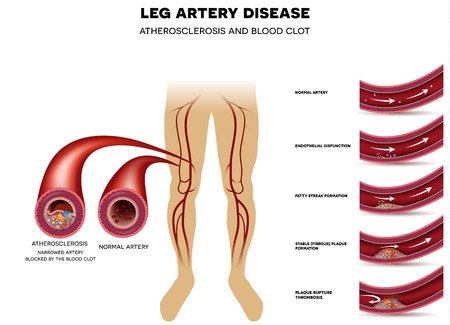 Leg artery disease and healthy artery. Peripheral Arterial Disease, Atherosclerosis progression, narrowed leg artery and at the end blood clot block artery. 矢量图像