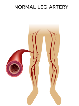 vessels: Healthy leg artery on a white background.