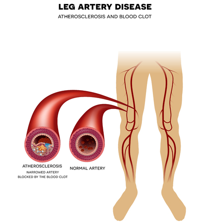 Healthy leg artery and Peripheral Arterial Disease, Atherosclerosis progression, narrowed leg artery and at the end blood clot may block artery 版權商用圖片 - 46314331