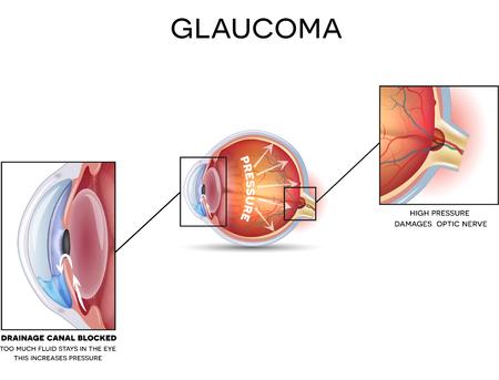 녹내장. 녹내장의 상세한 해부학, 흰색 배경에 눈 장애.