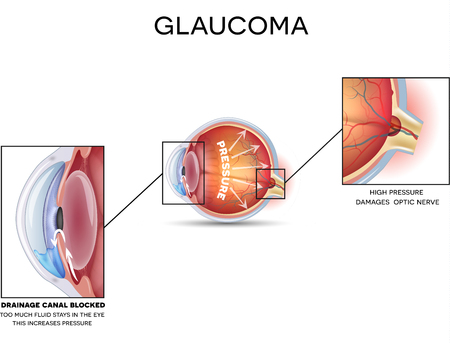 globo ocular: Glaucoma. Anatom�a detallada de Glaucoma, enfermedad de los ojos sobre un fondo blanco.