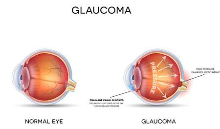 eye ball: Glaucoma. Detailed anatomy of Glaucoma and healthy eye.