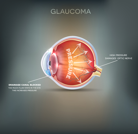 eye cross section: Glaucoma. Detailed anatomy of Glaucoma on a abstract background. Illustration