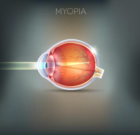 anatomia: La miopía, trastorno de la visión. La miopía se está miope (corto de vista). Lejos objeto de distancia parece borrosa. Vectores
