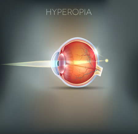Hyperopia, vision disorder. Hyperopia is being long sighted (far sighted). Near object seems blurry.