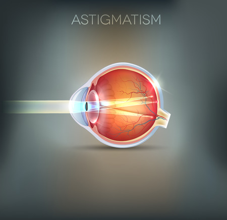 Human vision disorder, Astigmatism. Anatomy of the eye, cross section. Beautiful mesh background Illustration