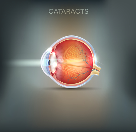 Cataracts abstract grey background. Human vision disorder, detailed anatomy of cataracts and healthy eye.
