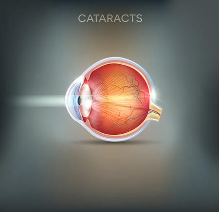 anatomia: Las cataratas fondo gris abstracto. trastorno de la visión humana, anatomía detallada de las cataratas y el ojo sano.