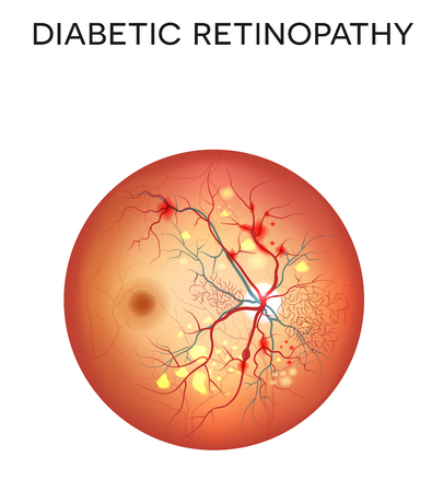 eye drawing: Diabetic retinopathy. The eye condition that affect people with diabetes. Illustration of the retina of the eye