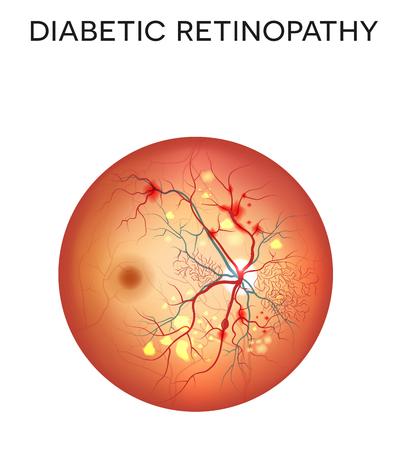 Retinopatia cukrzycowa. Stan oka, które wpływają na ludzi z cukrzycą. Ilustracja siatkówki oka