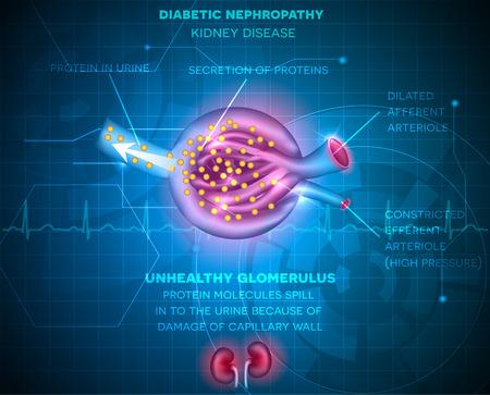 diabetes: Nefropatía diabética, enfermedad renal fondo azul abstracto. La enfermedad causada por la diabetes. Corpúsculo y glomérulo renal, una parte del riñón