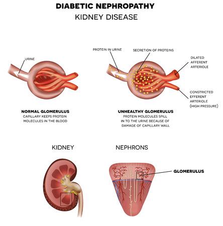 diabetes: Nefropatía, enfermedad renal diabética causada por diabetes. Corpúsculo y glomérulo renal, una parte del riñón