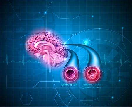 Arteria cerebral normal y la arteria con la aterosclerosis y coágulo de sangre. Bloqueo del flujo sanguíneo por el trombo. Resumen de fondo azul de la tecnología con el cardiograma.