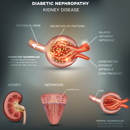 anatomía: Nefropatía, enfermedad renal diabética causada por diabetes. Las moléculas de proteínas se derraman en la orina debido a los daños de la pared capilar.