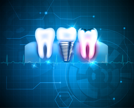 design bad: Healthy tooth, tooth with caries and dental implant on a abstract blue technology background