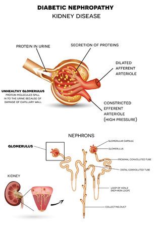 Diabetische nefropathie, nierziekte veroorzaakt door diabetes. Gedetailleerde anatomie van glomerulus, een deel van de nier. Eiwitmoleculen morsen in de urine door schade capillaire wand. Stock Illustratie