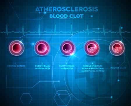 angina: Anatomía de la arteria y la formación de la aterosclerosis, finalmente arteria bloqueada por el coágulo de sangre. Tecnología de fondo azul abstracto.