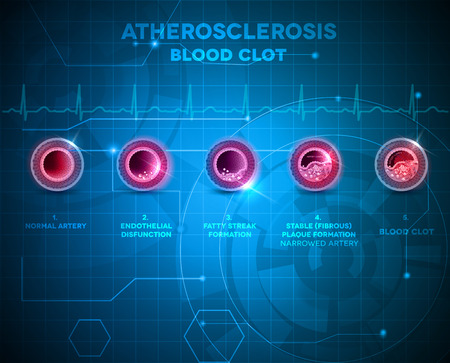 Artery anatomy and atherosclerosis formation, finally artery blocked by the blood clot. Abstract blue technology background.