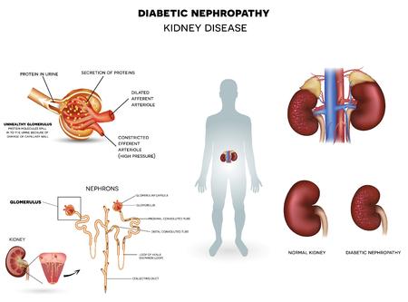 糖尿病性腎症、詳細情報のポスター、美しいカラフルなデザイン、糖尿病によって引き起こされる腎臓疾患。