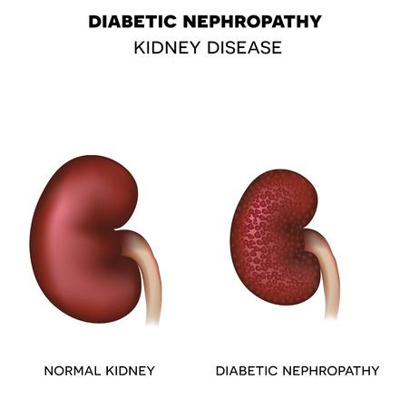 糖尿病性腎症、糖尿病によって引き起こされる腎臓疾患。健康な腎臓と不健康な腎臓