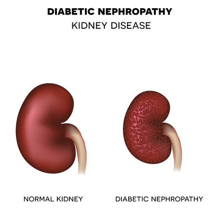 renal failure: Diabetic Nephropathy, kidney disease caused by Diabetes. Healthy kidney and unhealthy kidney