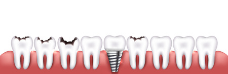 tooth: Healthy teeth, teeth with caries and dental implant, beautiful bright illustration. Various teeth conditions Illustration