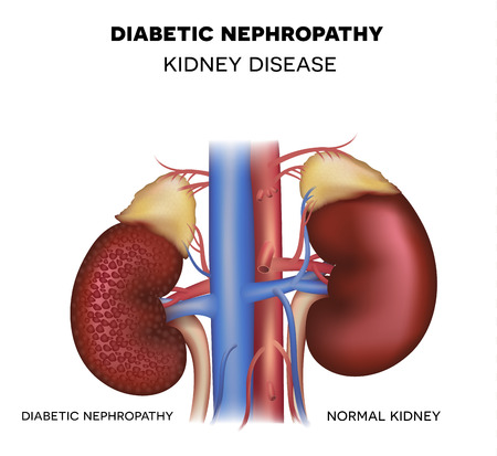 Diabetische nefropathie, nierziekte veroorzaakt door Diabetes Stock Illustratie