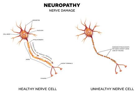 nervios: Neuropatía, el daño de los nervios. Esto puede ser causado por la diabetes. Vectores