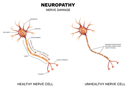 dendrites: Neuropathy, damage of nerves. This can be caused by Diabetes.