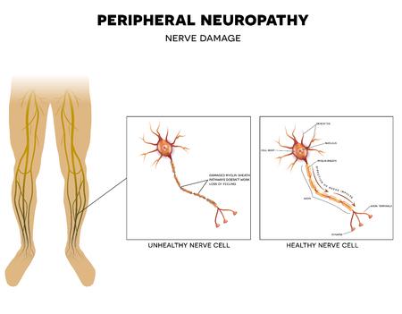 neurona: Neuropatía, el daño de los nervios periféricos. El dolor y la pérdida de sensibilidad en las extremidades. Esto puede ser causado por la diabetes. Vectores