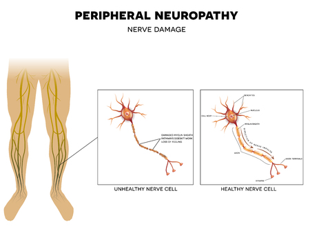 Neuropathy, damage of peripheral nerves. Pain and loss of sensation in the extremities. This can be caused by Diabetes. Illustration