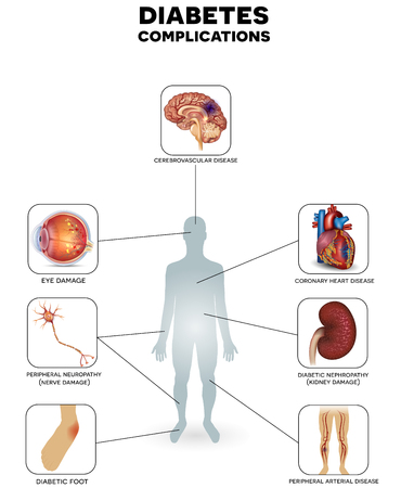 mellitus: Diabete mellito zone colpite. Il diabete colpisce i nervi, i reni, gli occhi, i vasi, il cuore e la pelle.