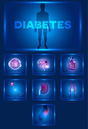 diabetes: Órganos afectados diabetes. La diabetes afecta a los nervios, riñones, ojos, vasos, el cerebro, el corazón y la piel. Diseño azul hermoso