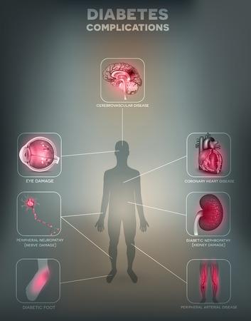 diabetes: Diabetes mellitus afectada �rganos. La diabetes afecta a los nervios, ri�ones, ojos, vasos, el cerebro, el coraz�n y la piel. Fondo malla gris abstracto Vectores