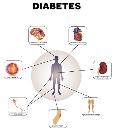 complications: Diabetes complications detailed info graphic on a white background
