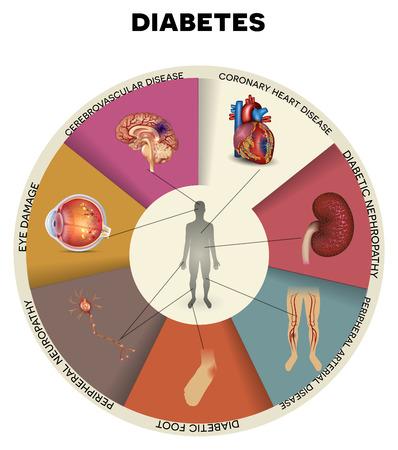 Diabetes complicaties gedetailleerde info graphic. Aangetaste organen door diabetes, mooi kleurrijk ontwerp
