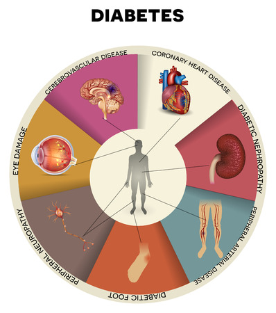 diabetes: Diabetes complications detailed info graphic. Affected organs by diabetes, beautiful colorful design