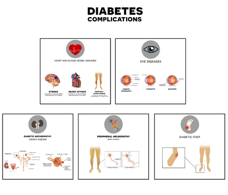 糖尿病合併症罹患した器官。糖尿病は、神経、腎臓、目、血管、心と肌に影響します。  イラスト・ベクター素材