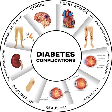 Powikłania cukrzycy wpływa narządów. Cukrzyca dotyka nerwów, nerek, oczu, naczyń, serca, mózgu i skóry. Informacje Okrągły graficzny. Ilustracje wektorowe