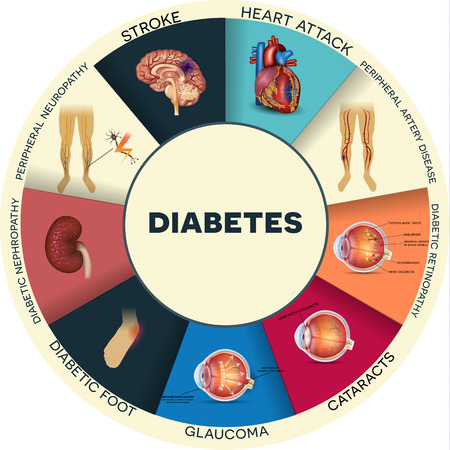 complications: Diabetes complications affected organs. Diabetes affects nerves, kidneys, eyes, vessels, heart, brain and skin. Detailed round colorful info graphic. Illustration